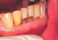 Dental erosion in lower teeth